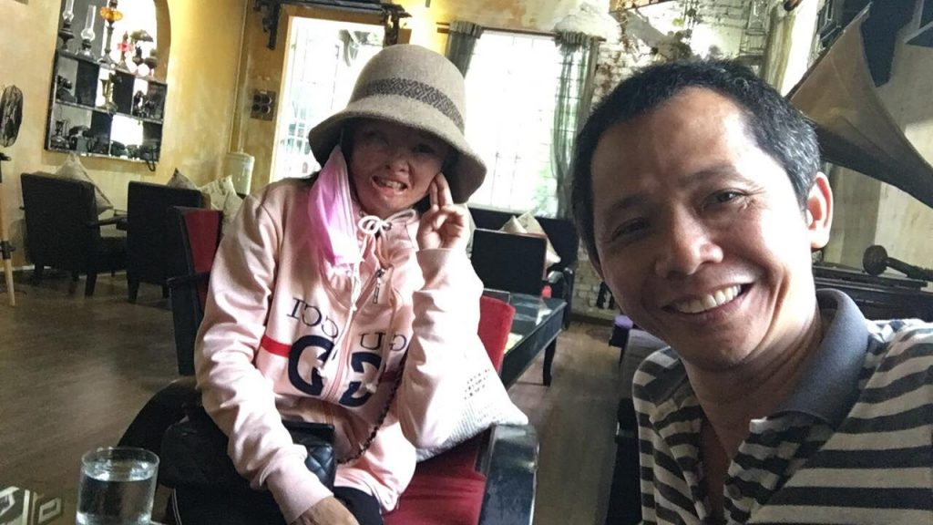Dep is an acid attack victim in Vietnam, being helped by documentary Nguyen Vu Phuoc