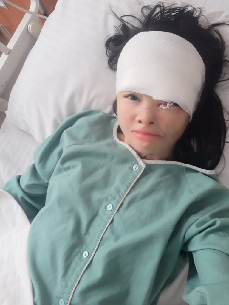 Dep before eye surgery from acid attack in Vietnam